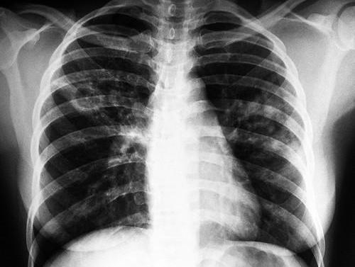 «Фтизиатры настраже здоровья»: Как в столице сражаются стуберкулезом
