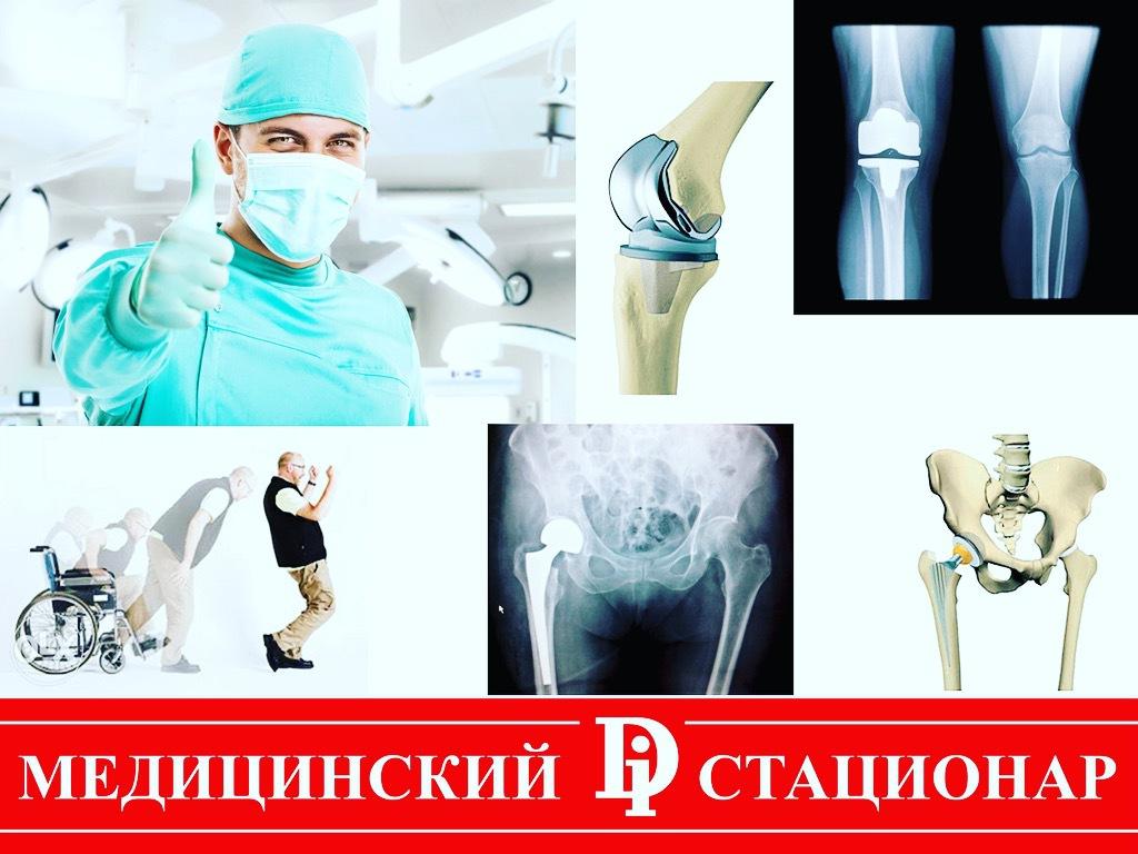 Протезирование коленных суставов в саратове боли локтевом суставе руки