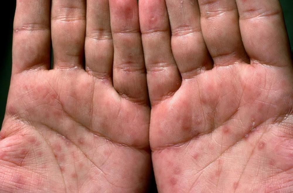 Амурская область угодила вчисло регионов ссамой высокой заболеваемостью сифилисом