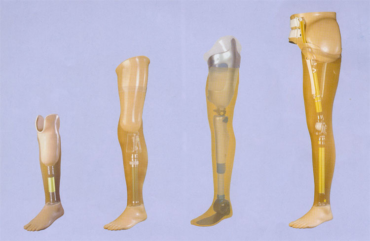 срочной, цены на протезирование ног ниже колена